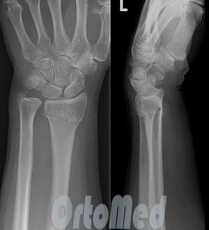 сложные переломы лучевой кости со смещением