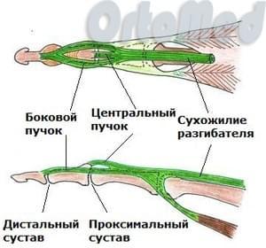 подкожный разрыв сухожилия разгибателя ногтевой фаланги