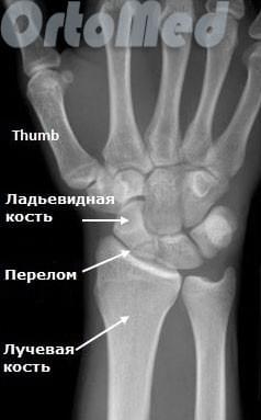 Перелом ладьевидной кости руки, лечение | Перелом большого пальца руки