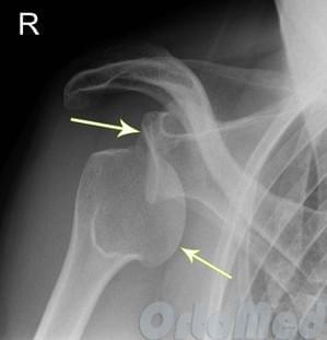 плечевой сустав привычный вывих лечение
